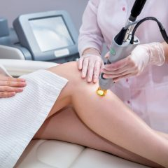 Important To Know About Laser Hair Removal For Different Skin And Hair Type